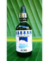 Acne Erdacating Formula - 2 oz